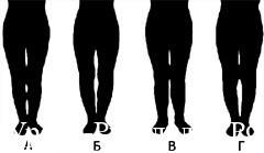 скрыть ноги толстые